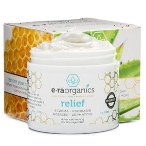Psoriasis & Eczema Cream with Organic Aloe Vera, Manuka Honey, Hemp Oil